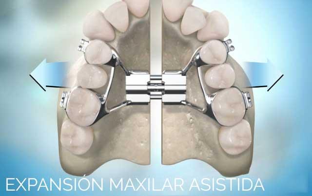 Expansión maxilar asistida