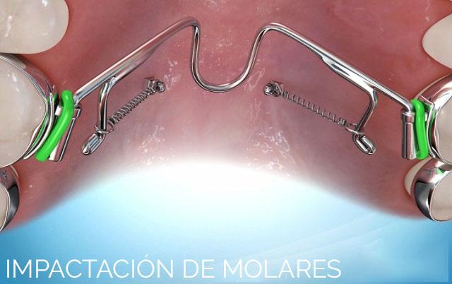 Impactación de molares