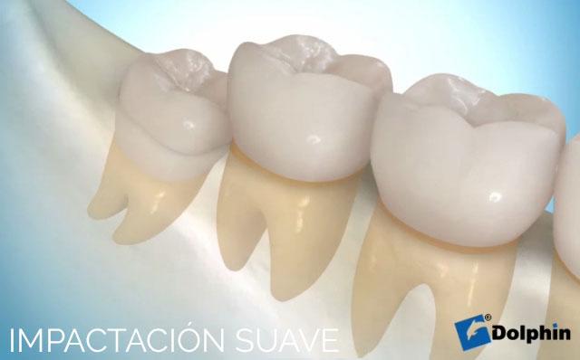 Implantación Suave