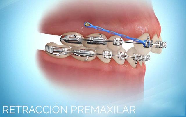 Microtornillo para retracción premaxilar