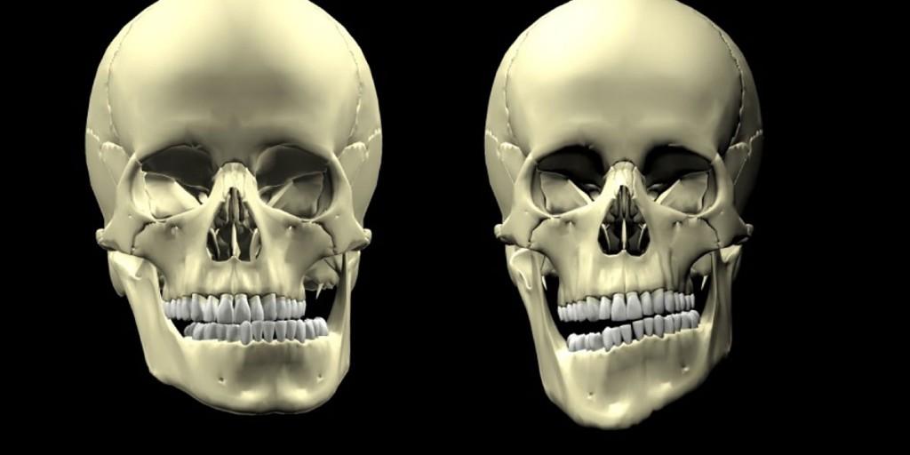 defrormidades-faciales