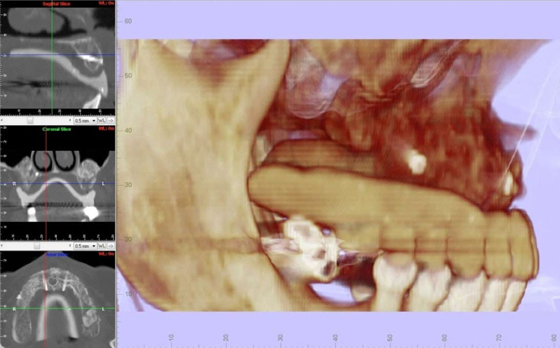 hueso-maxilar-recuperado