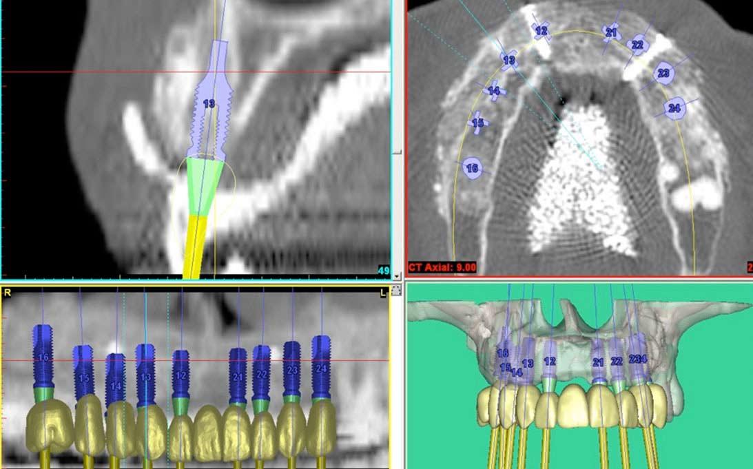planificacion-de-implantes