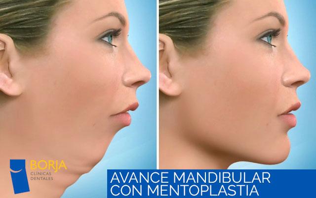 Avance mandibular con mentoplastia