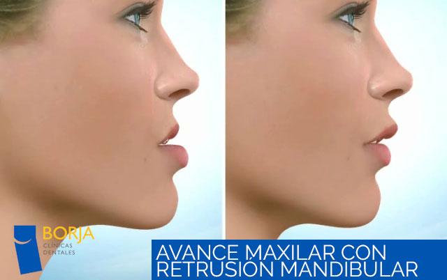 Avance maxilar con retrusión mandibular