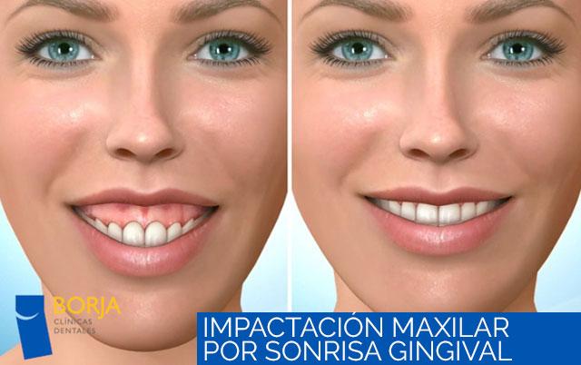 impactación maxilar por sonrisa gingival