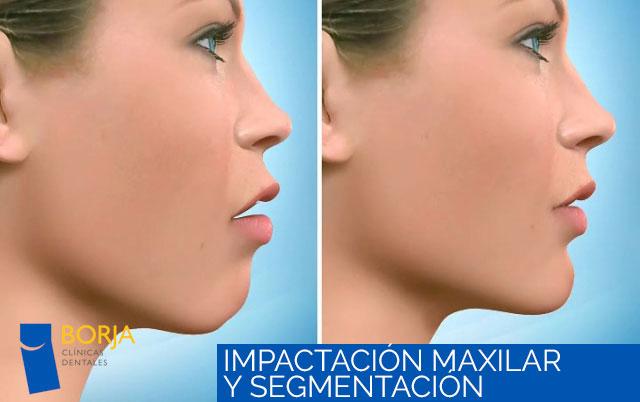 impactacion maxilar y segmentacion