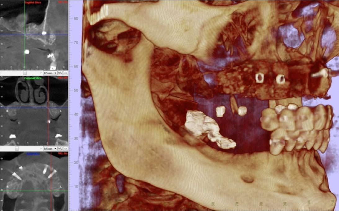 regeneracion-cadera