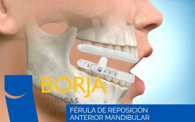 férula de reposición anterior mandibular