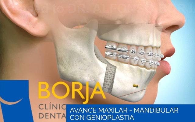 Avance Maxilar-Mandibular con genioplastia
