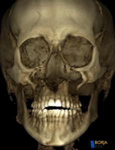 Imagen Scanner 3D