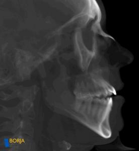 Imagen radiografía
