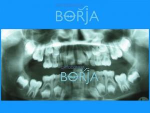 1-ortodonciaborja