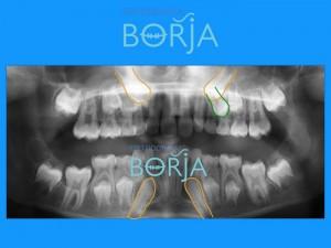 3-ortodonciaborja