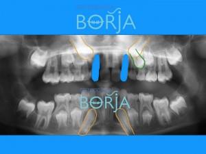 4-ortodonciaborja