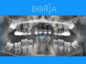 5-ortodonciaborja