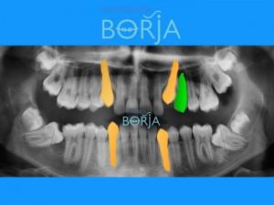 6-ortodonciaborja