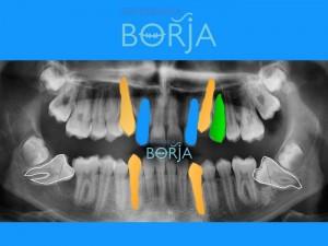 7-ortodonciaborja