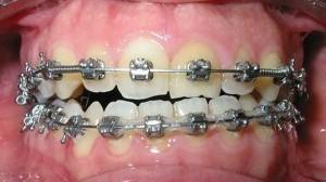 diente 2