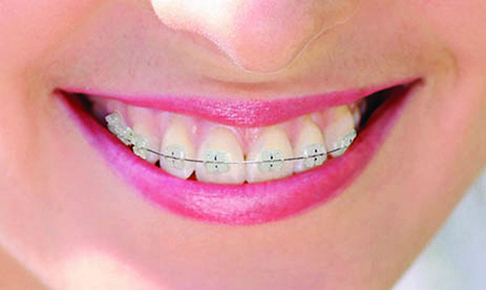 dentsplay 11