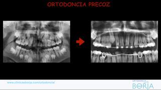 TRATTO PRECOZ FACEBOOK.004