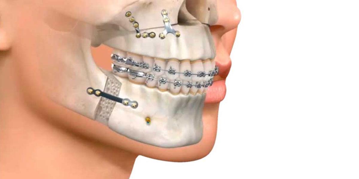¿Qué Abarca La Cirugía Maxilofacial?