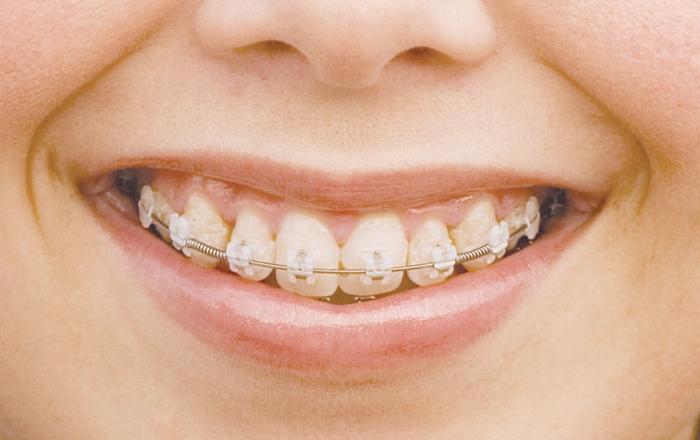 dentsplay 8
