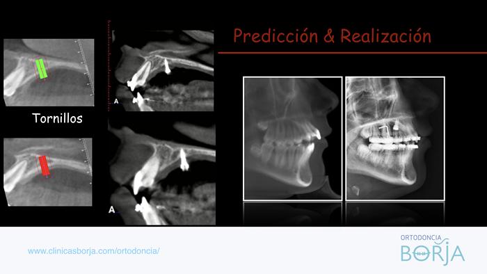 tornillos-radiografia